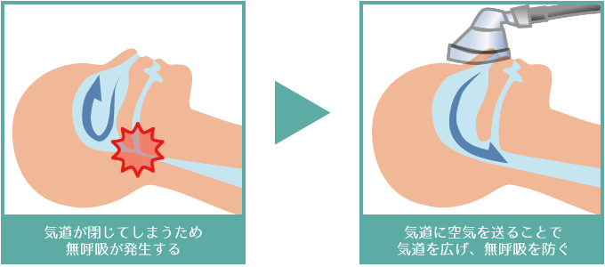 副作用 シーパップ CPAP療法(シーパップ療法)の効果、副作用の対策・対応